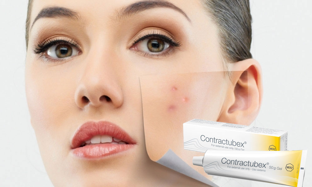 Remove Acne Scars – With Modern Methods Of Treatment And Contractubex®